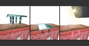 Storing medical information below the skin's surface