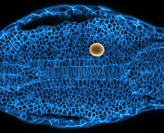 Zebrafish embryonic tissue showing cell borders (cyan: membranes) and a magnetic droplet used to probe the tissue mechanics (yellow: magnetic droplet). @ Alessandro Mongera