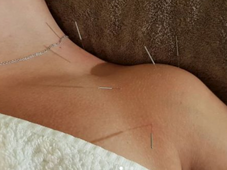 Acupuncture: Making the Most of Your Body's own Medicine