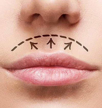 Lifting de Buze - Lip Lift