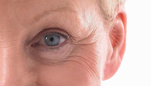 Blefaroplastie Skin Pinch