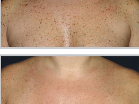 BBL FOREVER YOUNG – Soluție non-invazivă, pe termen lung, de întinerire a pielii