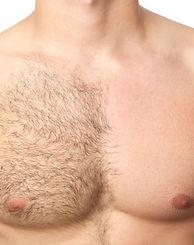depilação masculina rj