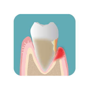 An inflamed gum with periodontal disease