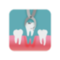 Carefully removing a damaged tooth using extraction forceps