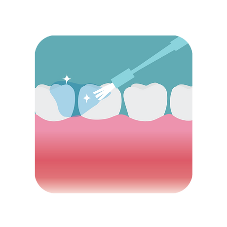 Applying fluoride gel onto teeth with a small brush