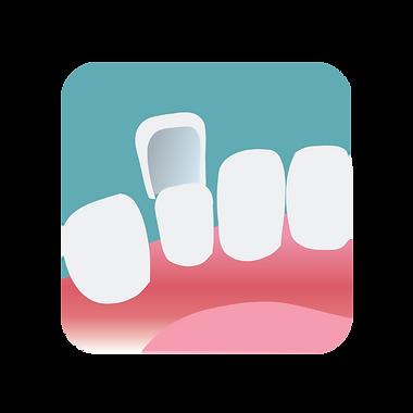 Placing a veneer on a prepared tooth