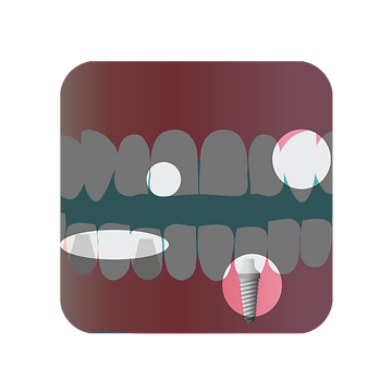 A full mouth reconstruction with implant, bridge, and bonding
