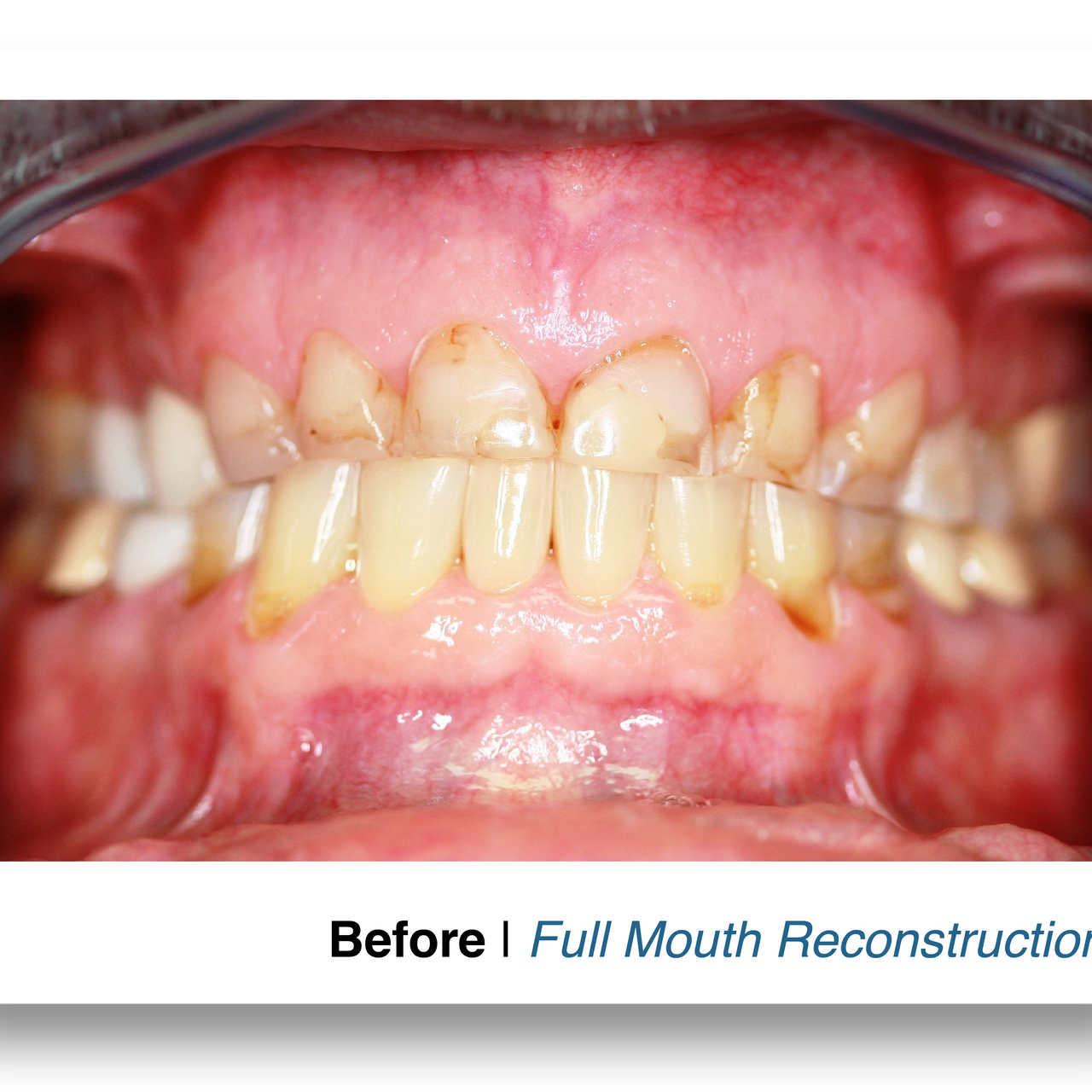 Before - Full Mouth Reconstruction