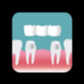 Placing a bridge on two prepared teeth
