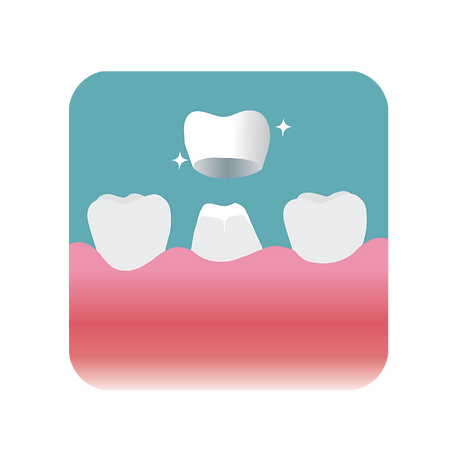 Placing a crown on a prepared tooth