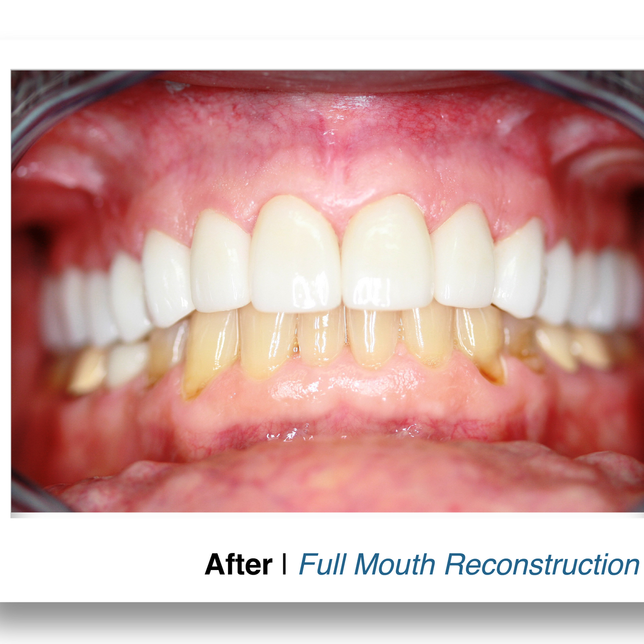 After - Full Mouth Reconstruction