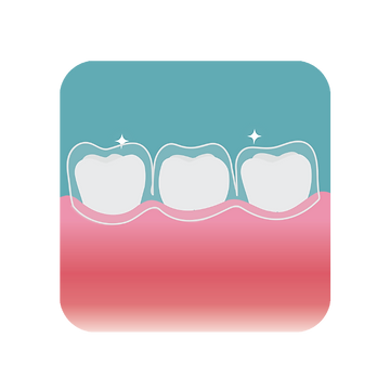 Clear, see-through Invisalign fitted onto teeth