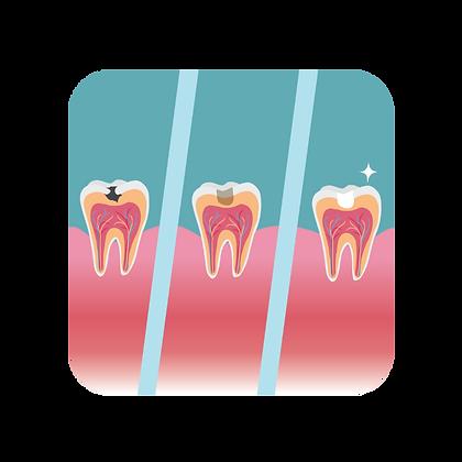 Process of cavity filling