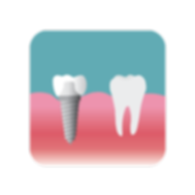 An implant with a titanium anchor rooted into the gum