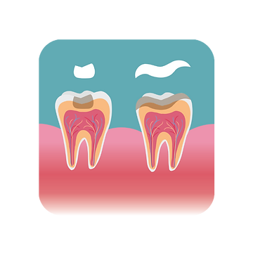 inlay and onlay placement on teeth
