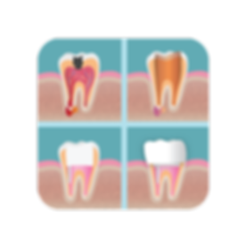 Root canal process to restore an infected tooth