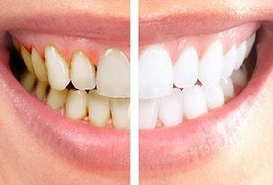 pulizia-dentale-prima-e-dopo.jpg