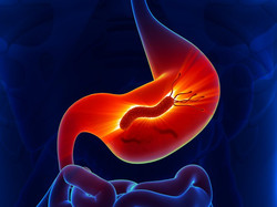 rid-your-gut-of-this-cancer-causing-bact