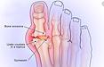 Gouty arthritis.png