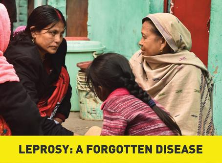 Leprosy: A Forgotten Disease