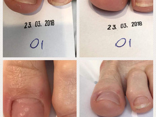 "Behandeling Ingroeiende nagel d.m.v. een Gelbeugel of ""Arkada"" techniek"