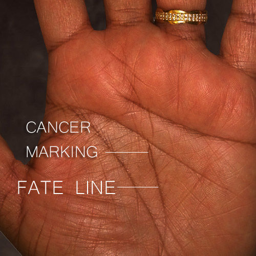 cancer markings on the palms palmistry