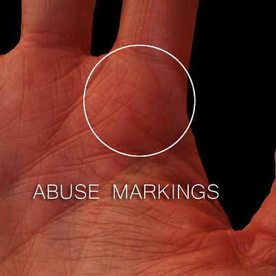 Abuse / Trauma lines on the hands