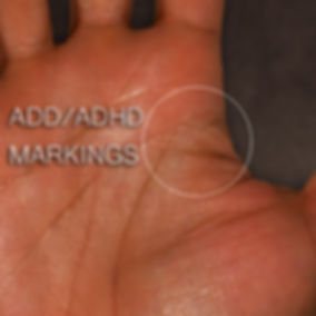 ADD / ADHD marking on your hands kosmickonnection.com
