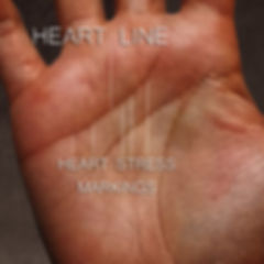 heart health signs on your hands