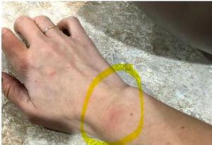 bruised arm.JPG