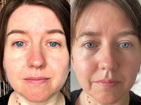 My Tropic Skincare Routine