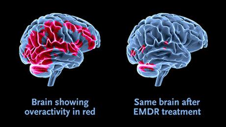 EMDR-web-illustration.jpg