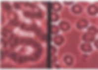 Sticky blood rouleaux before and after p