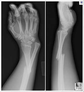 Curatron PEMF for fracture healing