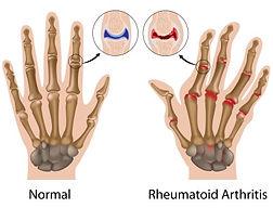 Curatron pemf-for-arthritis-and-osteoarthritis