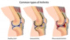 arthritis-and-osteoarthritis | pemfratronic