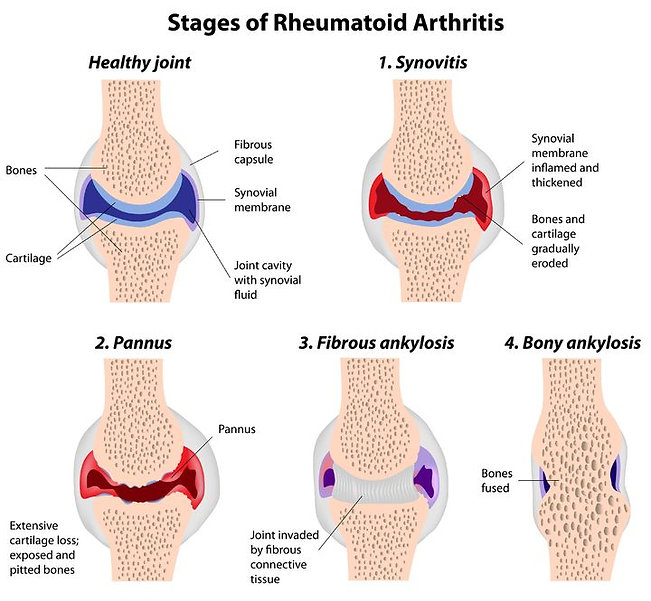 PEMF for rheumatic arthritis with curatron