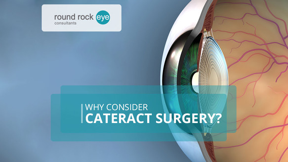 Why Consider Cataract Surgery?
