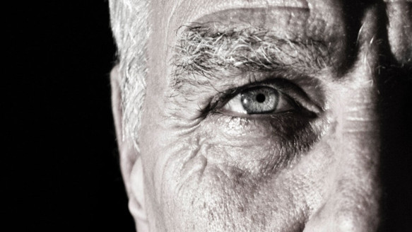 The Many Facets of Glaucoma