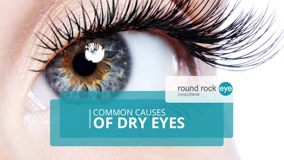 Causes Of & Treatments For Dry Eye