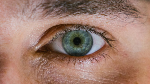 How Are Cataracts Formed?