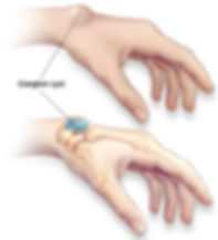 Ganglion Cysts at Canadian Plastic Surgery Centre