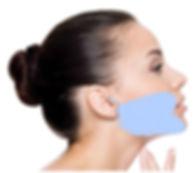 Mini-Face Lift at Canadian Plastic Surgery Centre