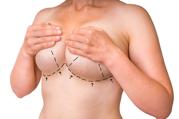 Breast Reduction at Canadian Plastic Surgery Centre