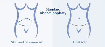 Standard abdominoplasty at Canadian Plastic Surgery Centre
