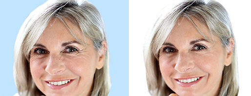 Neuromodulators Before and After at Canadian Plastic Surgery Centre