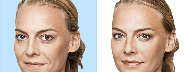 Facial Fillers Before and After at Canadian Plastic Surgery Centre
