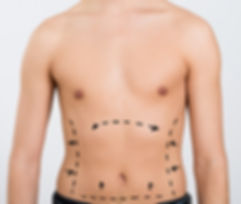 Post-Operative Instructions Abdominoplasty