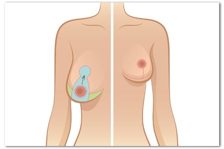 Breast Reduction Procedure at Canadian Plastic Surgery Centre
